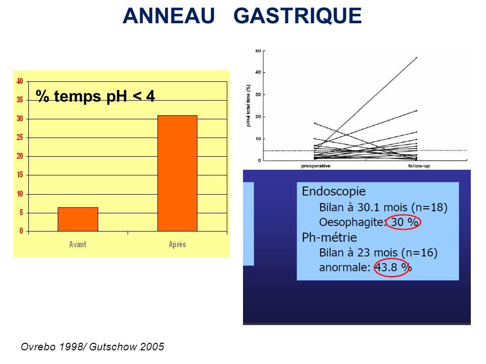 ANNEAU GASTRIQUE % temps pH < 4 Ovrebo 1998/ Gutschow 2005
