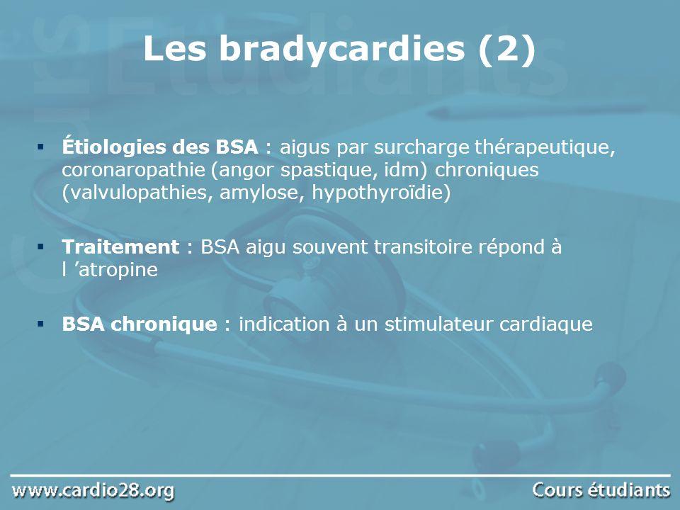 Les bradycardies (2)
