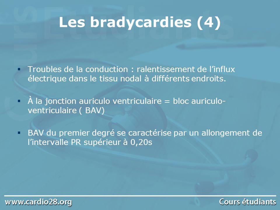 Les bradycardies (4) Troubles de la conduction : ralentissement de l'influx électrique dans le tissu nodal à différents endroits.