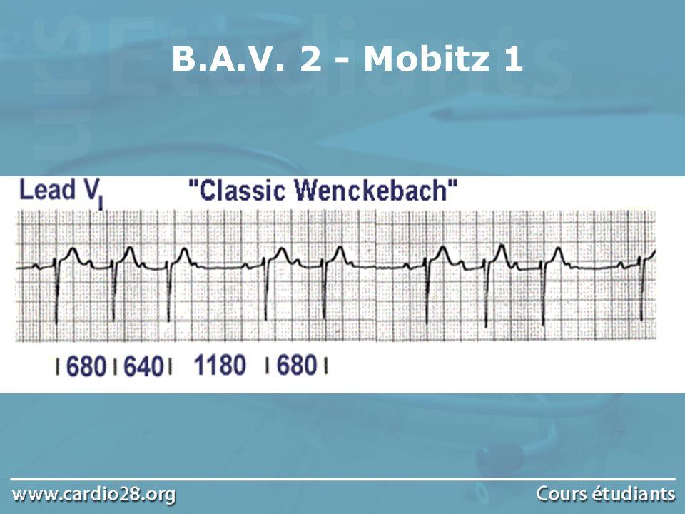 B.A.V. 2 - Mobitz 1