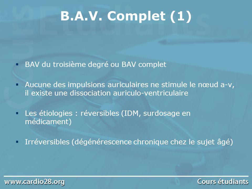 B.A.V. Complet (1) BAV du troisième degré ou BAV complet