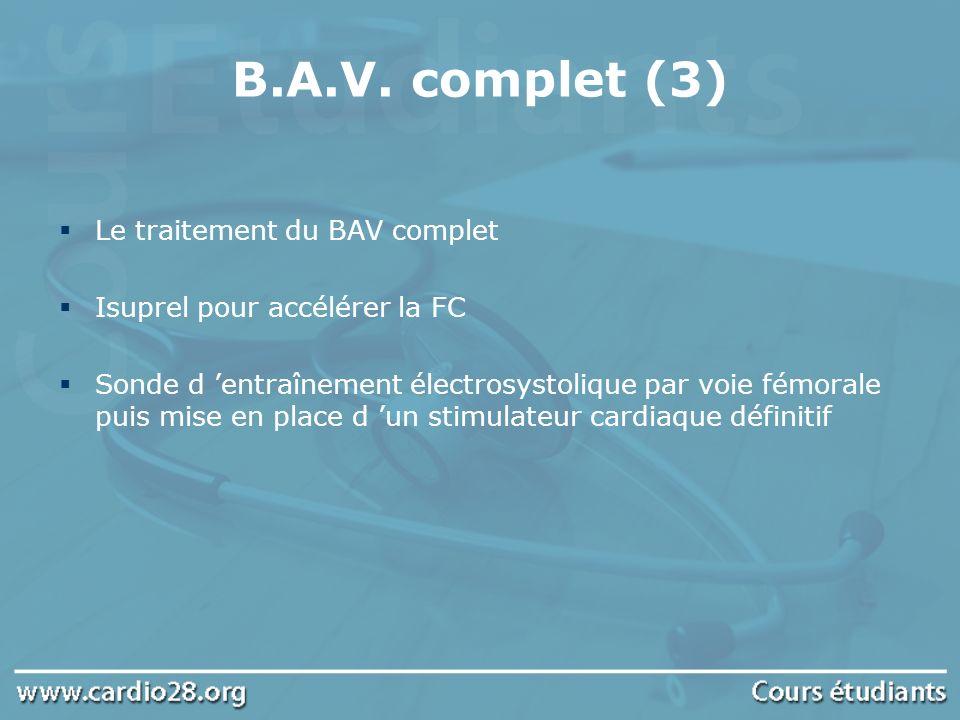 B.A.V. complet (3) Le traitement du BAV complet