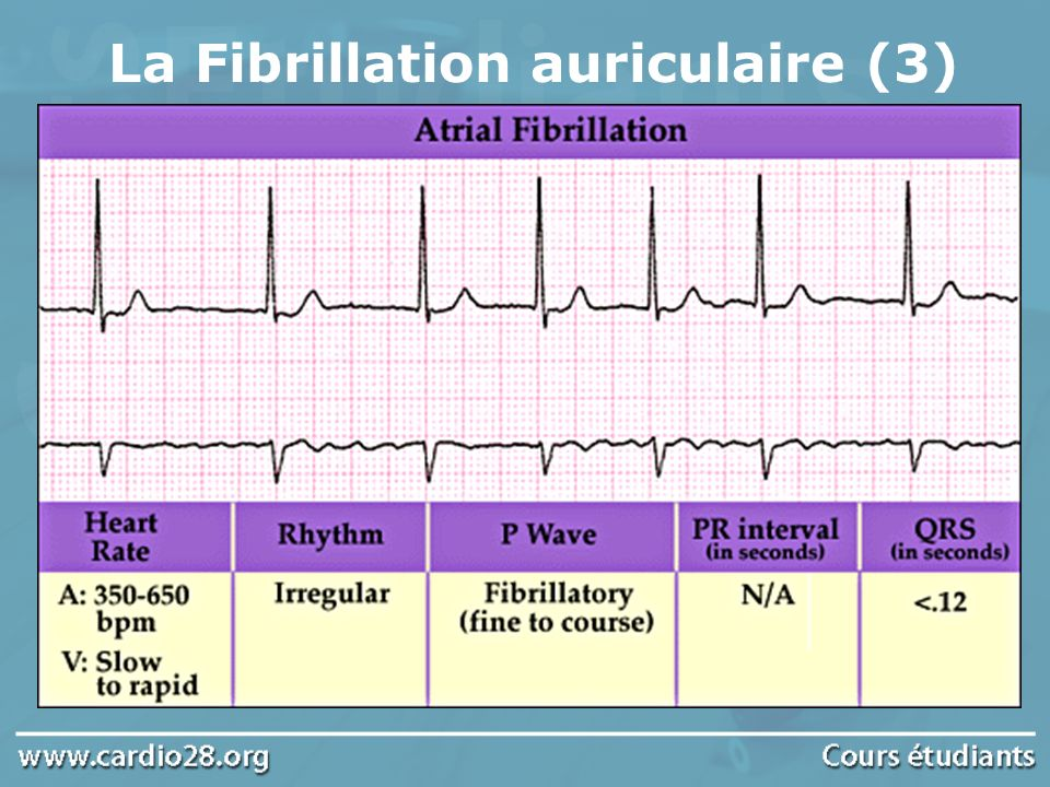 La Fibrillation auriculaire (3)