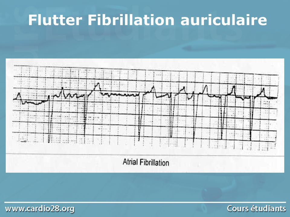 Flutter Fibrillation auriculaire