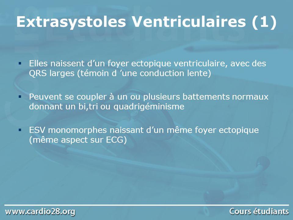 Extrasystoles Ventriculaires (1)