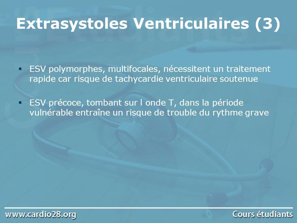 Extrasystoles Ventriculaires (3)