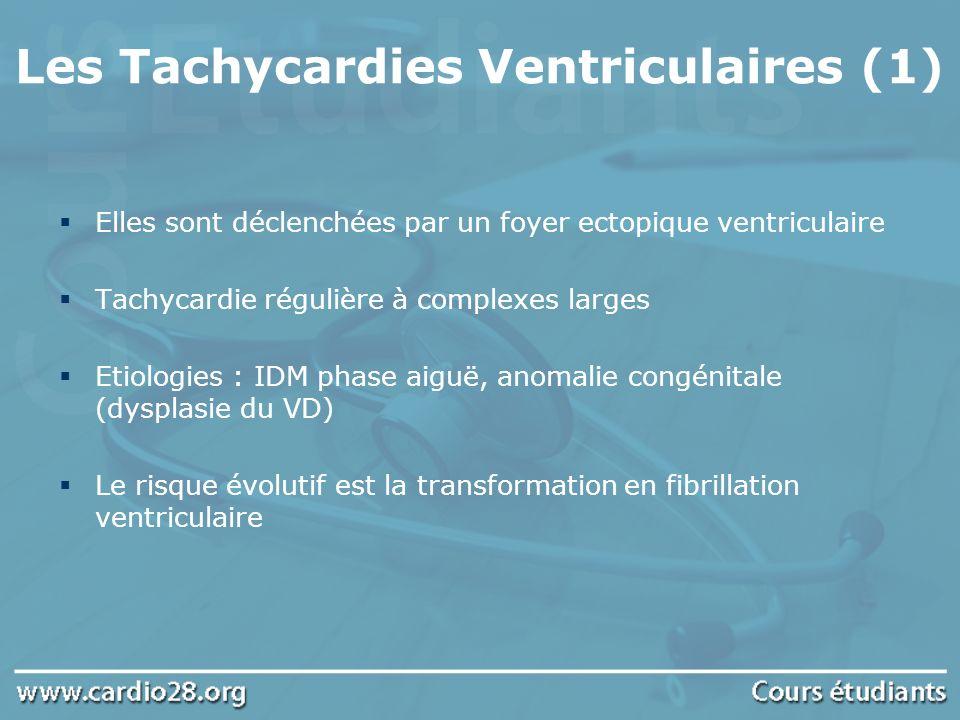 Les Tachycardies Ventriculaires (1)