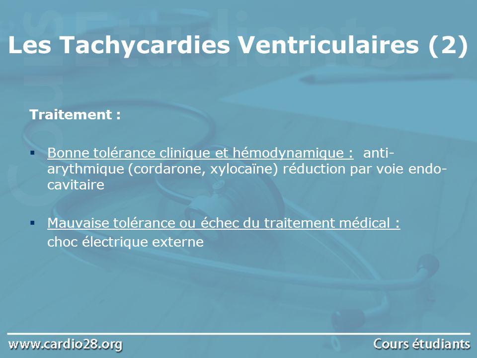 Les Tachycardies Ventriculaires (2)