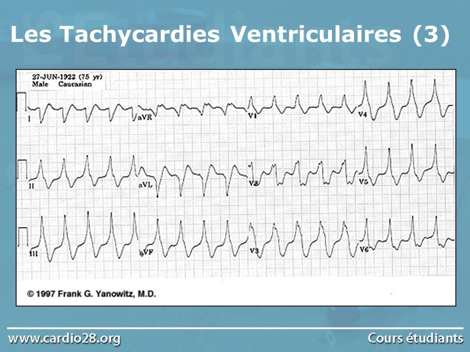 Les Tachycardies Ventriculaires (3)