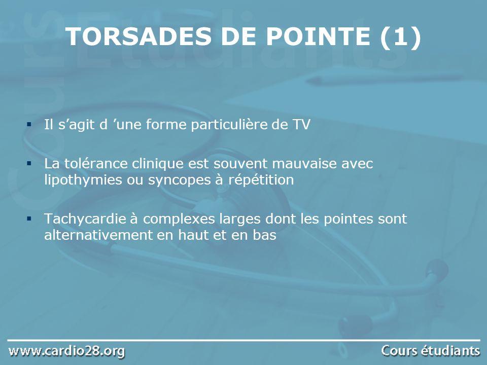 TORSADES DE POINTE (1) Il s'agit d 'une forme particulière de TV