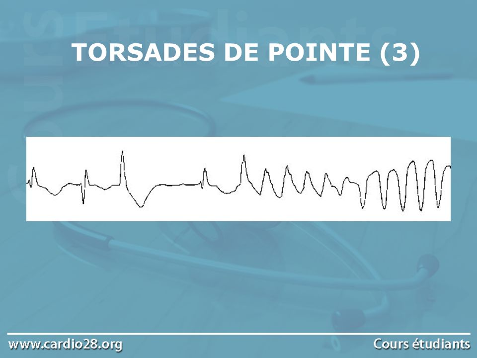 TORSADES DE POINTE (3)