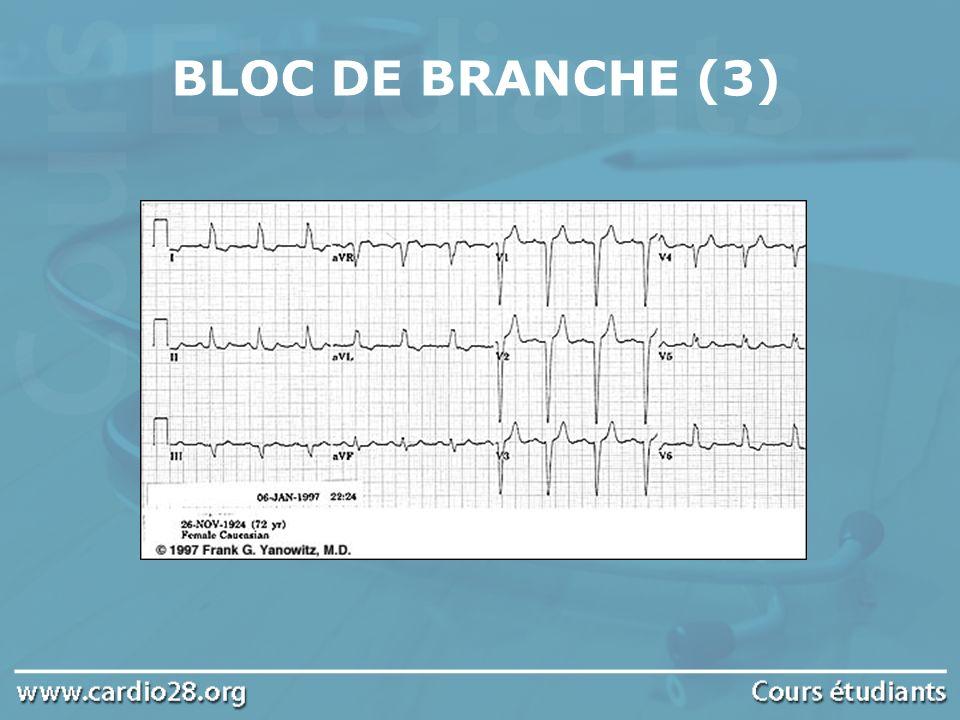 BLOC DE BRANCHE (3)