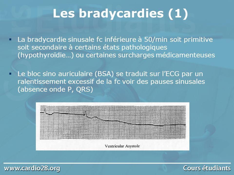 Les bradycardies (1)