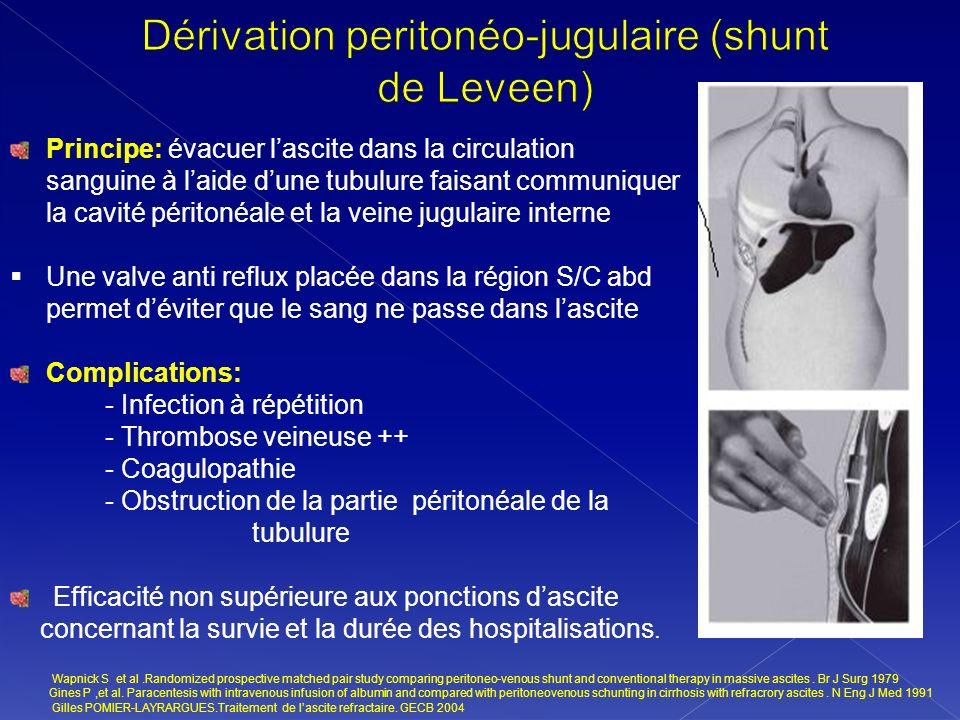 Dérivation peritonéo-jugulaire (shunt de Leveen)