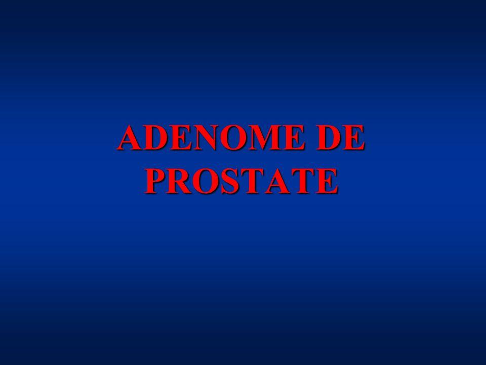 ADENOME DE PROSTATE
