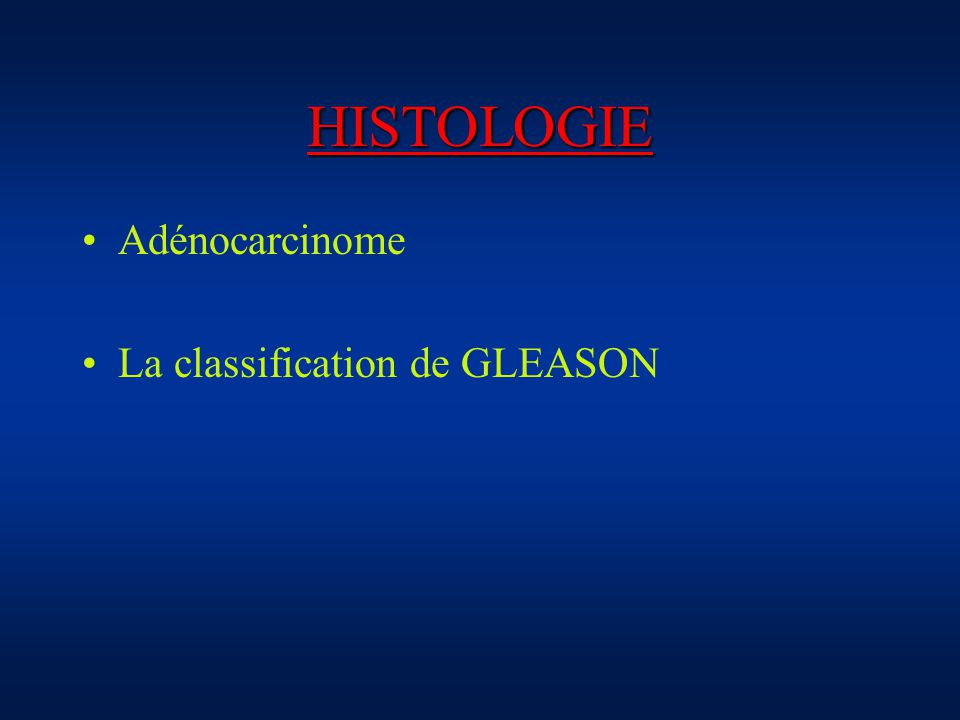 HISTOLOGIE Adénocarcinome La classification de GLEASON