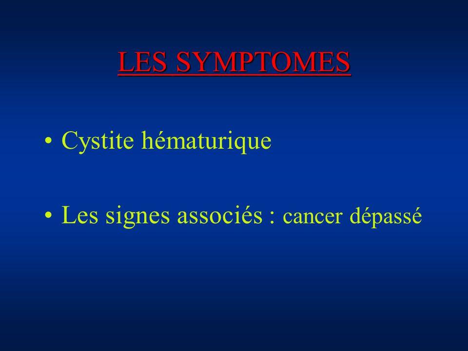 LES SYMPTOMES Cystite hématurique Les signes associés : cancer dépassé