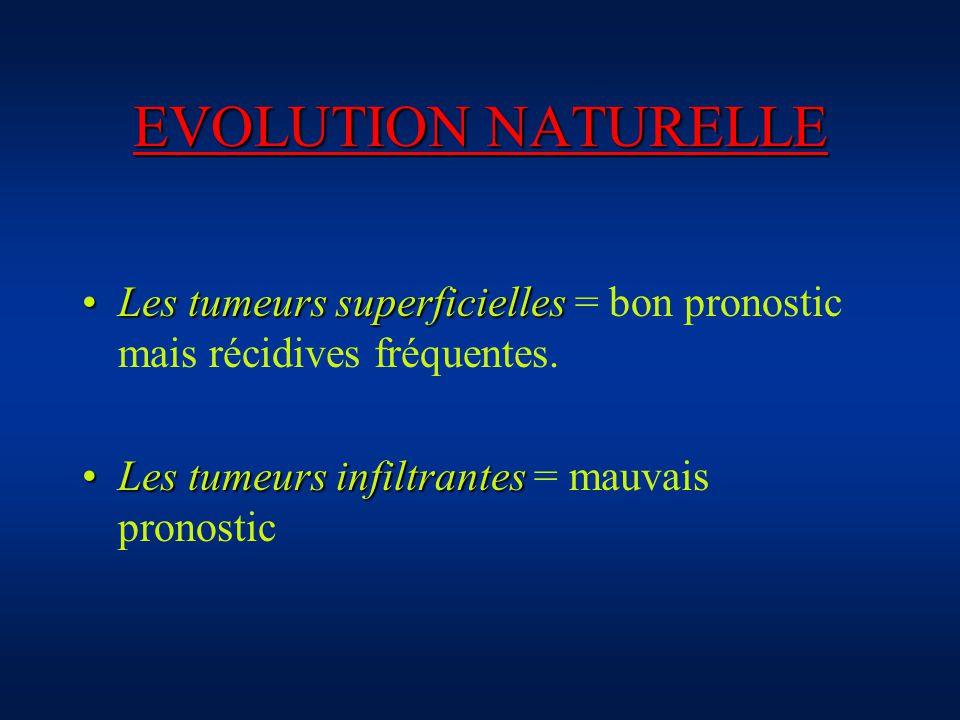 EVOLUTION NATURELLE Les tumeurs superficielles = bon pronostic mais récidives fréquentes.