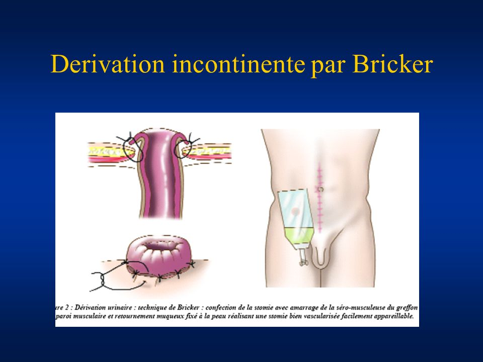 Derivation incontinente par Bricker