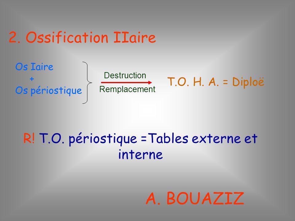 R! T.O. périostique =Tables externe et interne