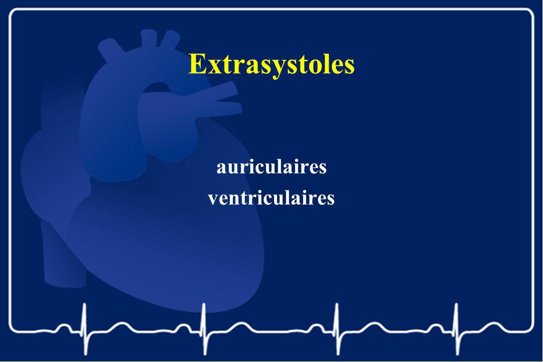 Extrasystoles auriculaires ventriculaires
