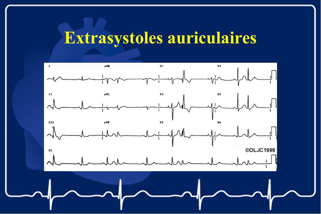 Extrasystoles auriculaires