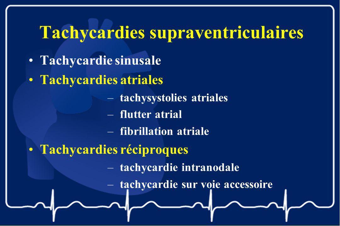 Tachycardies supraventriculaires