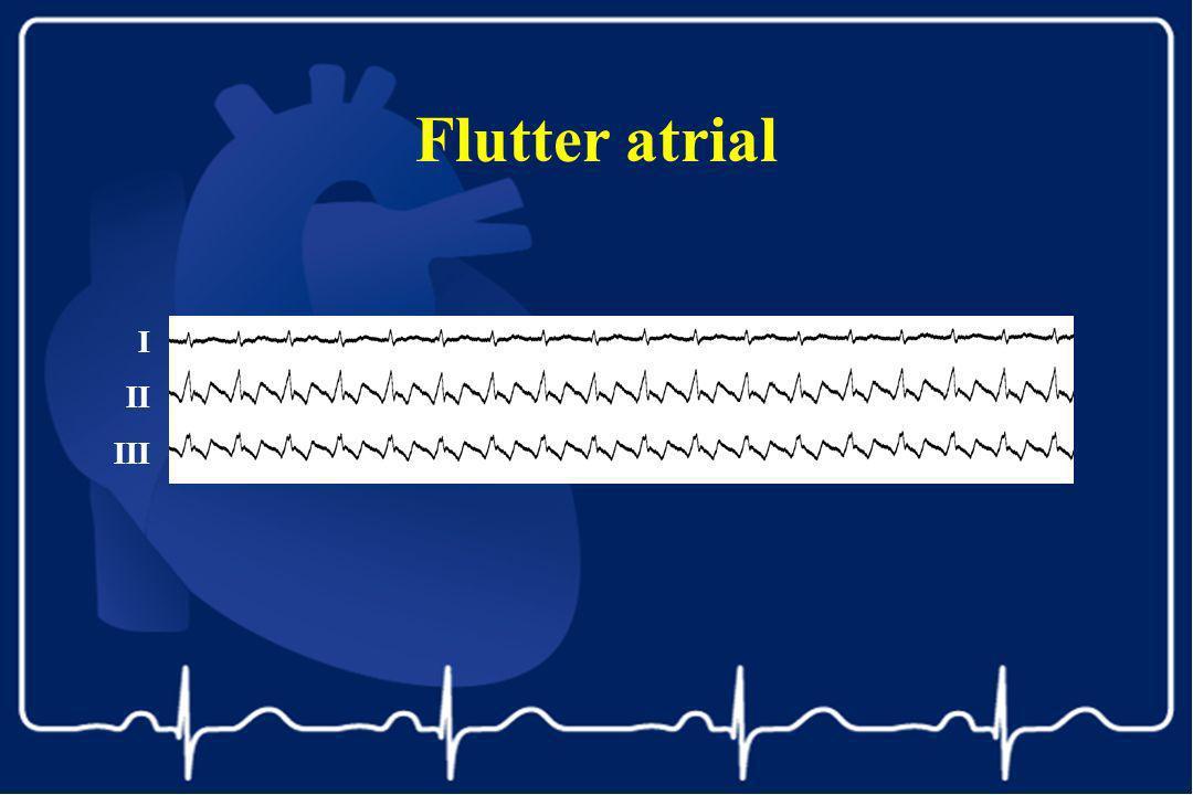 Flutter atrial I II III