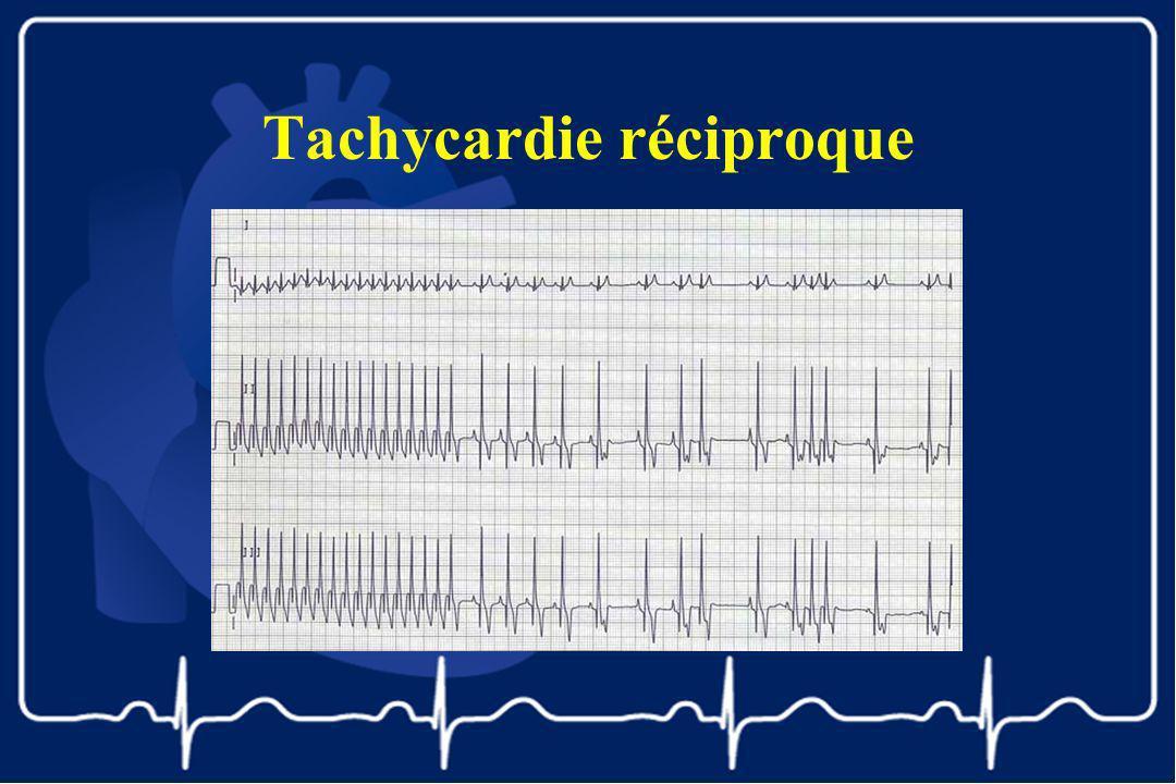 Tachycardie réciproque