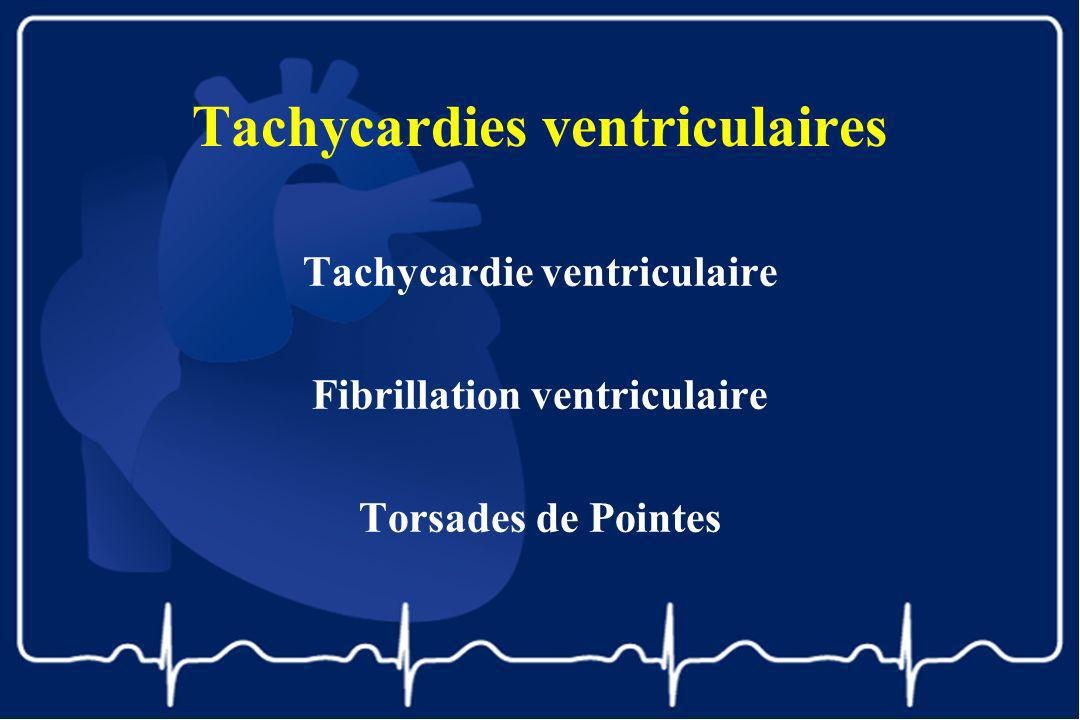 Tachycardies ventriculaires