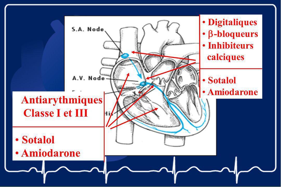 Antiarythmiques Classe I et III Sotalol Amiodarone Digitaliques