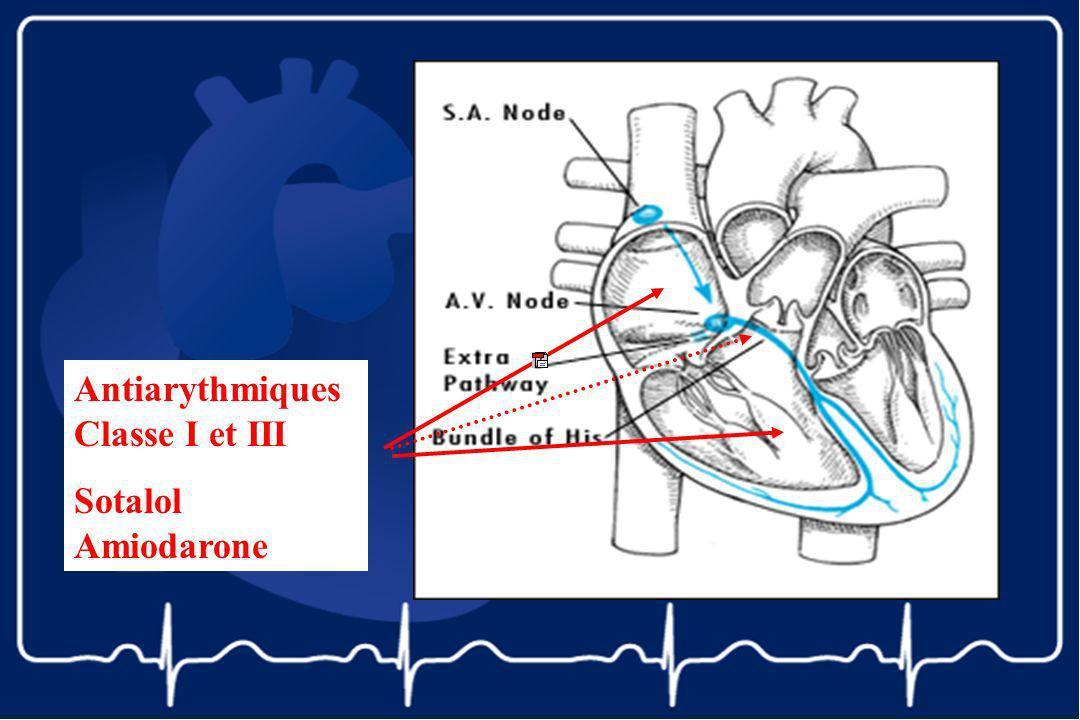 Antiarythmiques Classe I et III Sotalol Amiodarone