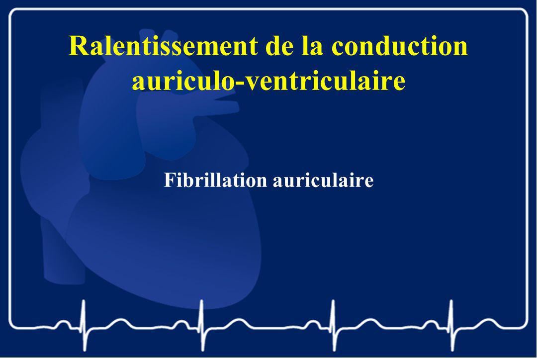 Ralentissement de la conduction auriculo-ventriculaire
