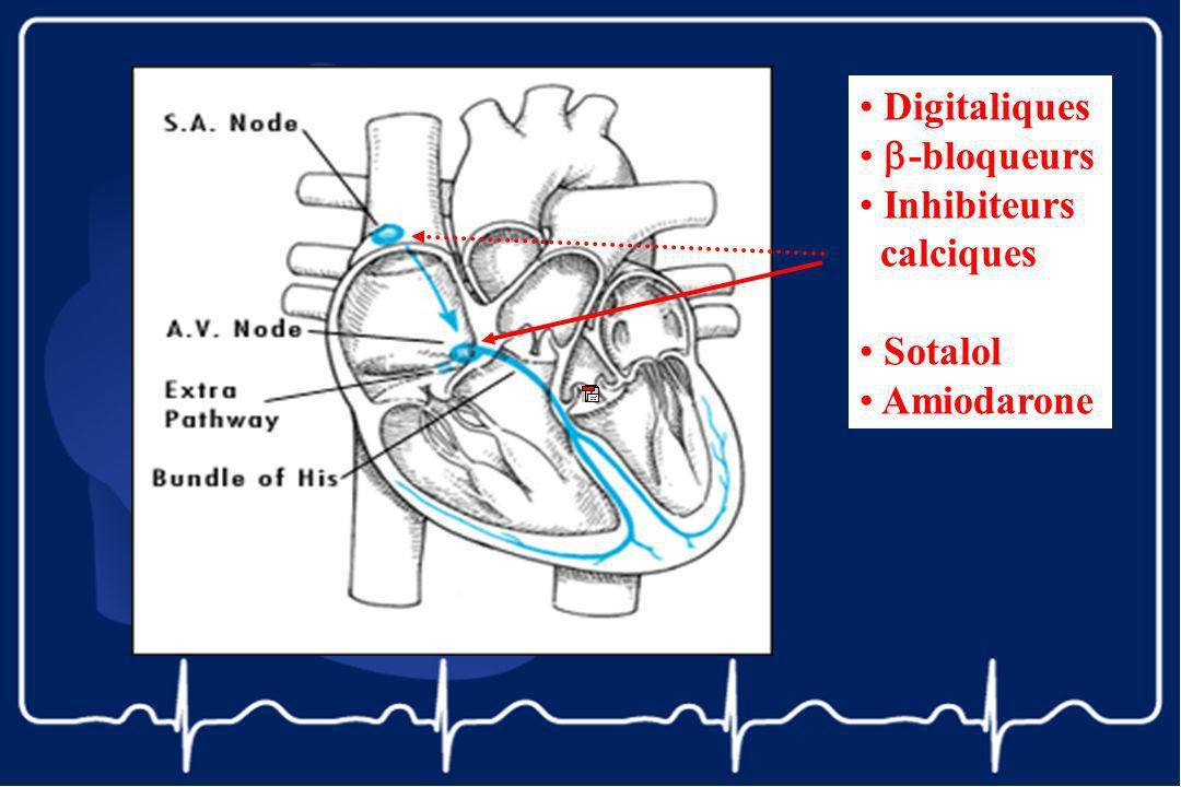 Digitaliques -bloqueurs Inhibiteurs calciques Sotalol Amiodarone