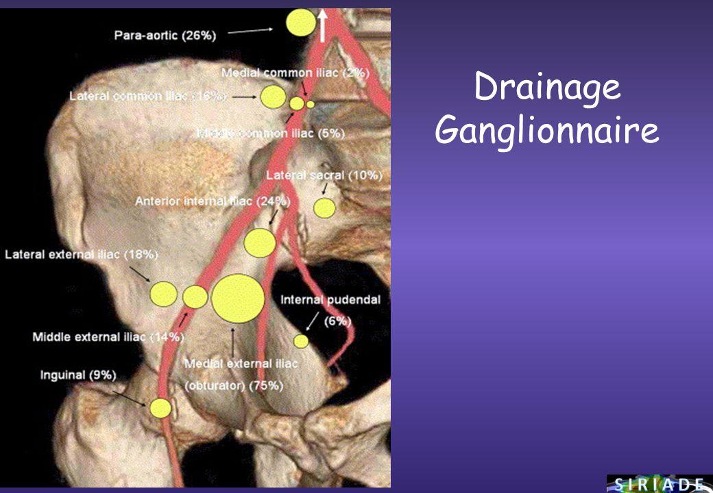 Drainage Ganglionnaire