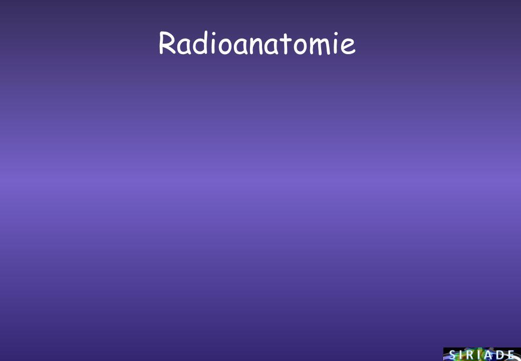 Radioanatomie