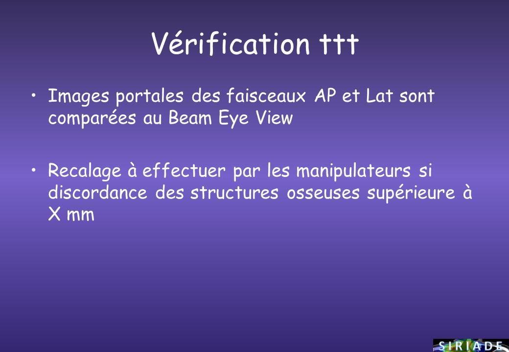 Vérification ttt Images portales des faisceaux AP et Lat sont comparées au Beam Eye View.