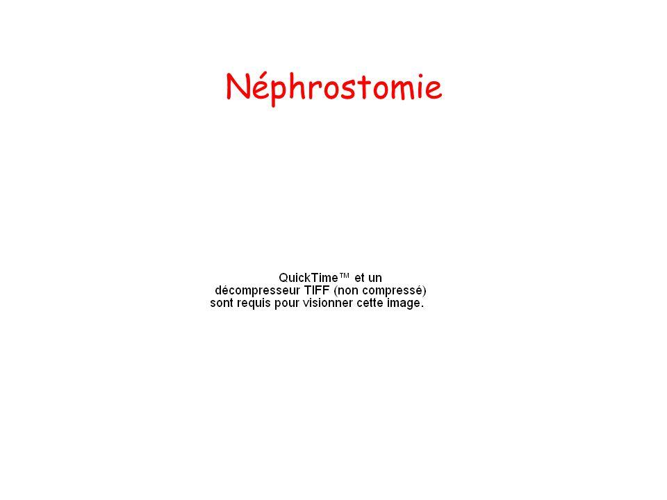 Néphrostomie