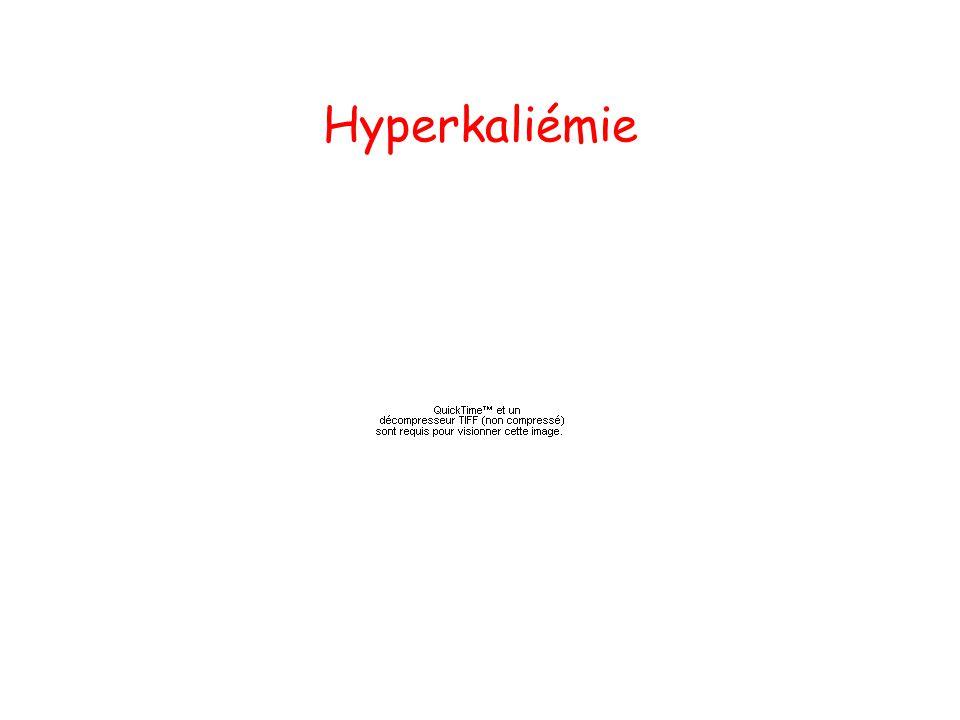Hyperkaliémie
