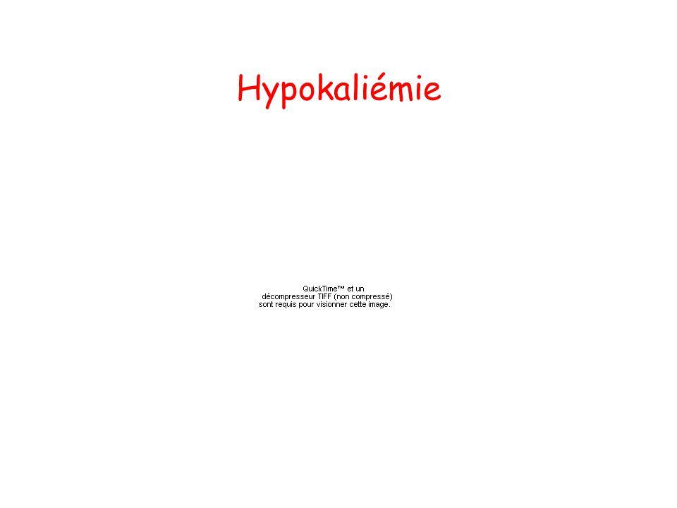 Hypokaliémie