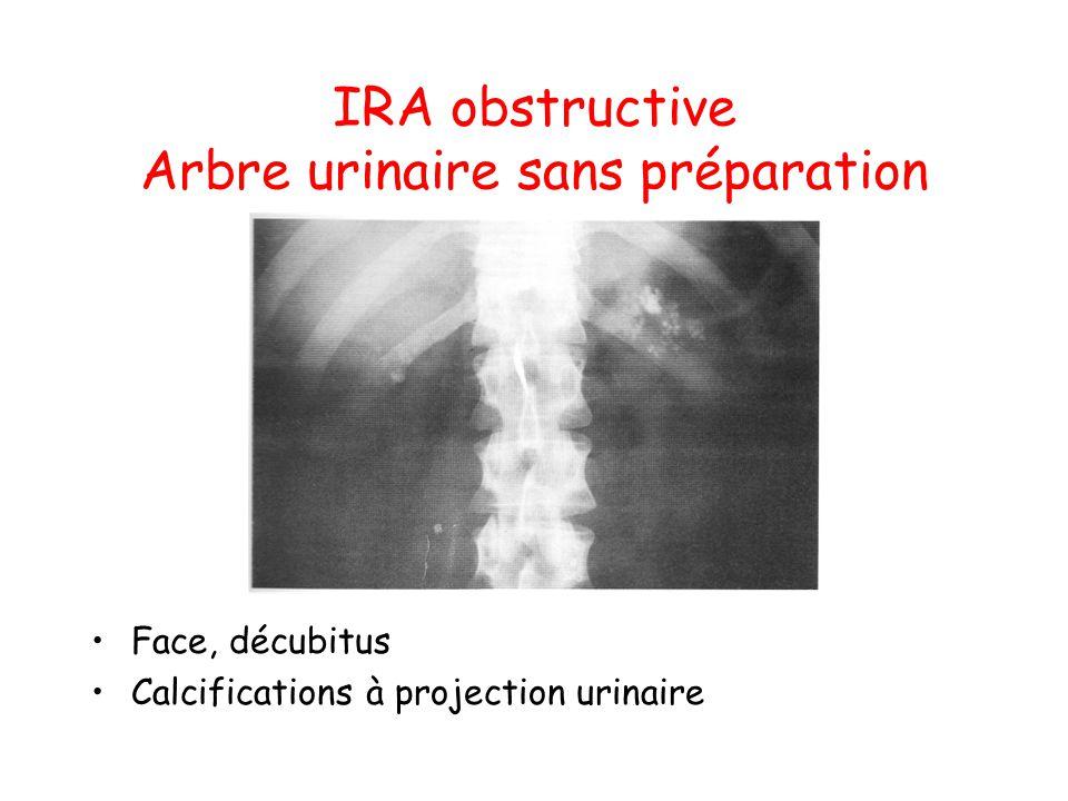IRA obstructive Arbre urinaire sans préparation