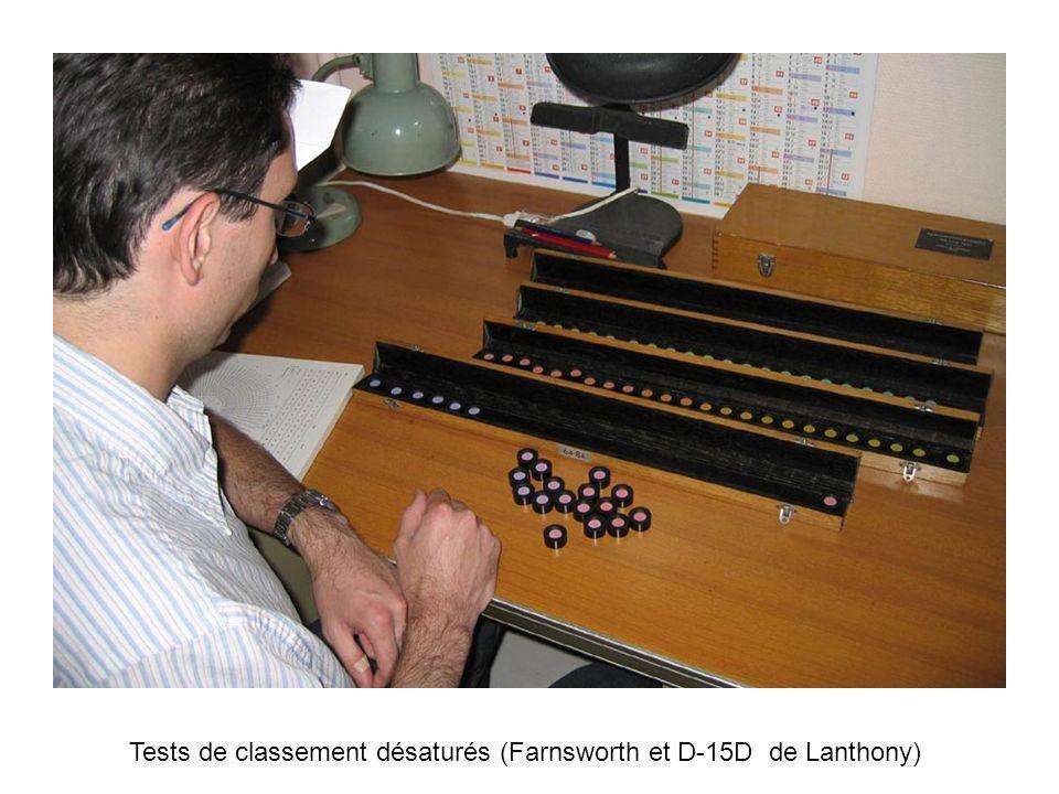 Tests de classement désaturés (Farnsworth et D-15D de Lanthony)