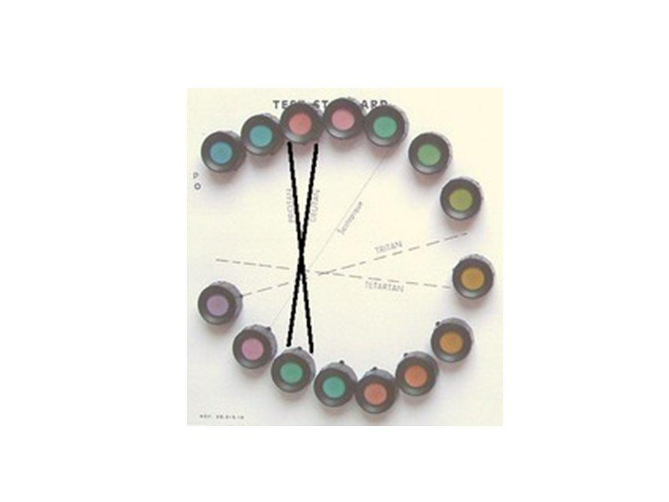 L'interprétation des résultats se fait sur un schéma en forme de boucle à partir duquel est déterminé l'axe de la dyschromatopsie