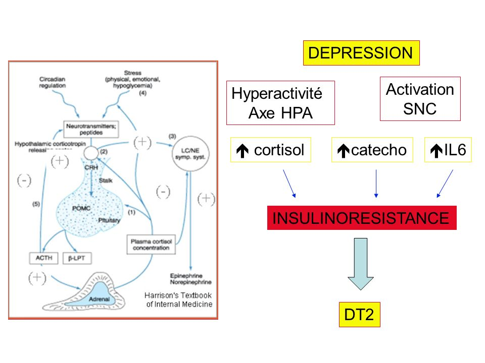 DEPRESSION Activation SNC Hyperactivité Axe HPA  cortisol catecho IL6 INSULINORESISTANCE DT2