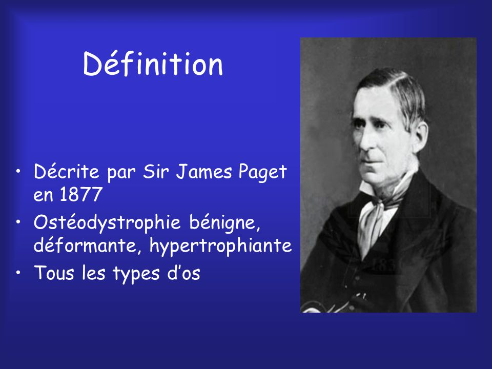 Définition Décrite par Sir James Paget en 1877