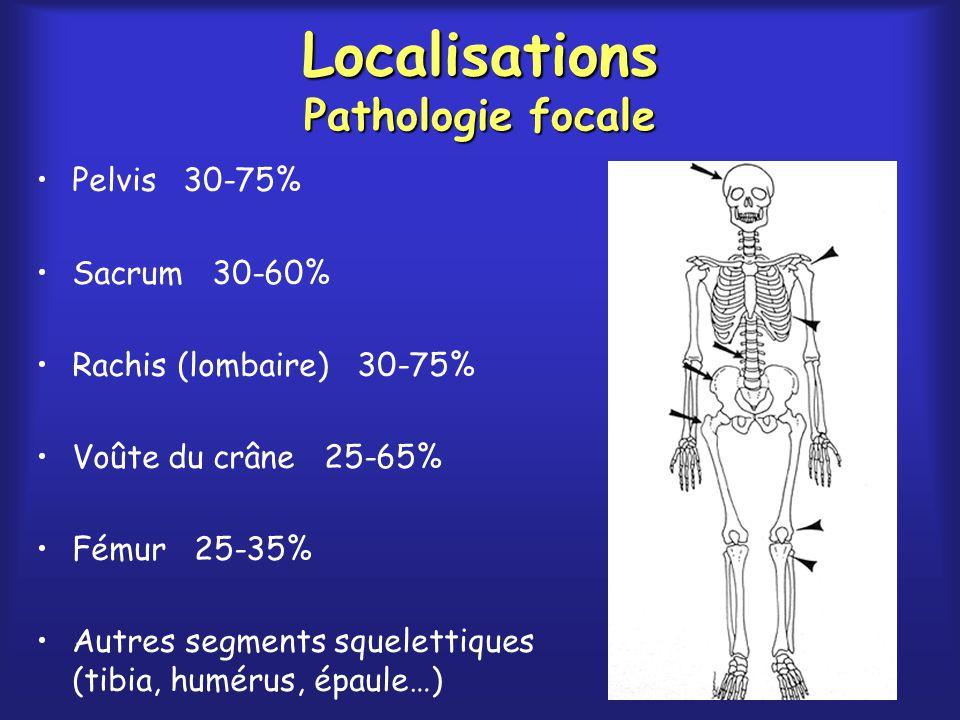 Localisations Pathologie focale