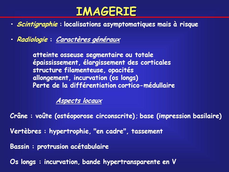 IMAGERIE • Scintigraphie : localisations asymptomatiques mais à risque