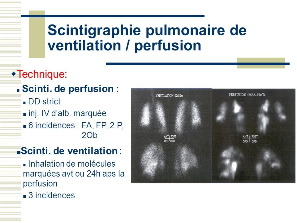 Scintigraphie pulmonaire de ventilation / perfusion