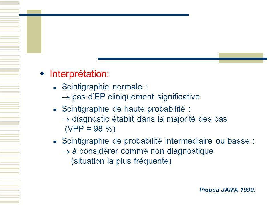 Interprétation: Scintigraphie normale :  pas d'EP cliniquement significative.