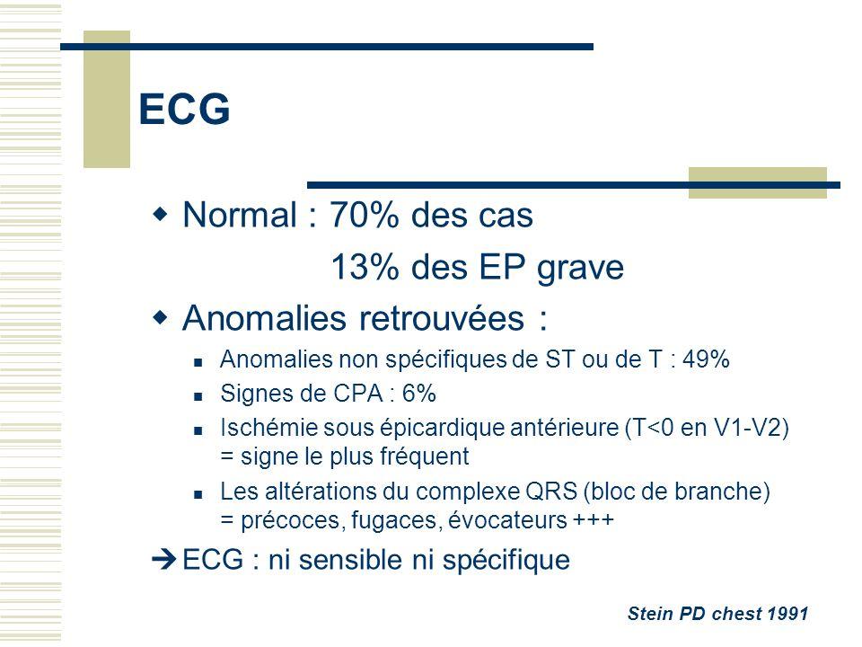 ECG Normal : 70% des cas 13% des EP grave Anomalies retrouvées :